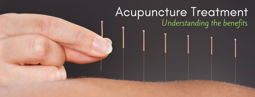 Acupuncture Needles in Skin